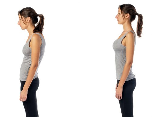 Poor Posture and Chiropractic Care